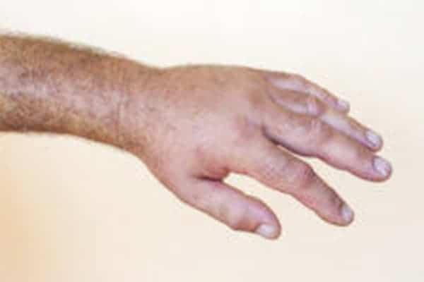 algodystrophie traitement kine algodystrophie bras chirurgien paris chirurgien nerfs paris maladie atteintes nerfs peripheriques docteur patrick houvet