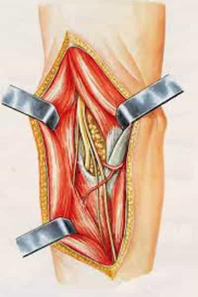 compression du nerf radial nerf radial sectionne chirurgien coude paris chirurgien nerfs paris maladie atteintes nerfs peripheriques docteur patrick houvet