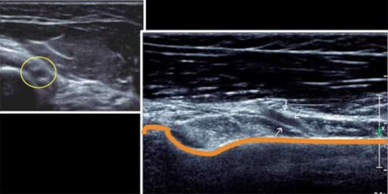 compression du nerf radial trajet nerf radial bras chirurgien coude paris chirurgien nerfs paris maladie atteintes nerfs peripheriques docteur houvet