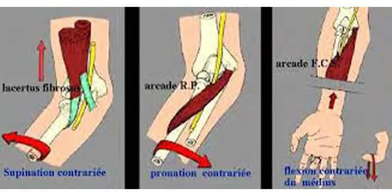 compression nerf median coude nerf median coince chirurgien coude paris chirurgien nerfs paris maladie atteintes nerfs peripheriques docteur patrick houvet