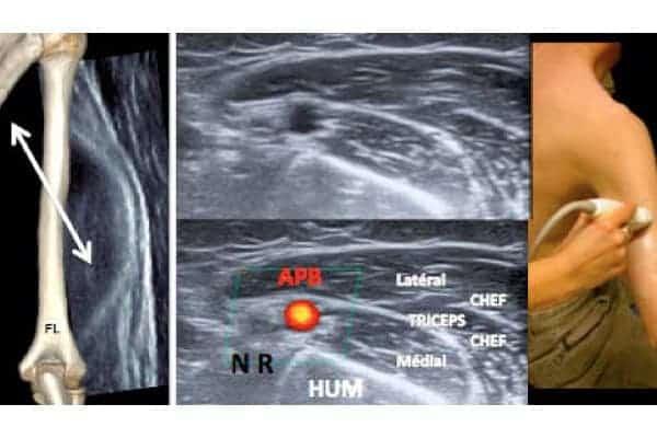 compression nerf radial compression nerf radial traitement chirurgien bras paris chirurgien nerfs paris maladie atteintes nerfs peripheriques docteur patrick houvet