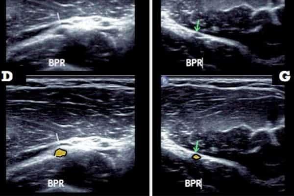 compression nerf radial coude nerf radial coude chirurgien coude paris chirurgien nerfs paris maladie atteintes nerfs peripheriques docteur patrick houvet