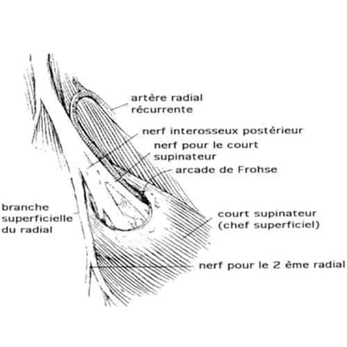 compression nerf radial coude nerf radial douleur chirurgien coude paris chirurgien nerfs paris maladie atteintes nerfs peripheriques docteur patrick houvet