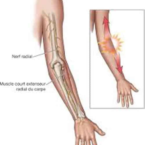 compression nerf radial coude nerf radial sectionne chirurgien coude paris chirurgien nerfs paris maladie atteintes nerfs peripheriques docteur patrick houvet