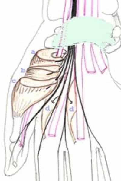 compression nerveuse main nerf dans la main chirurgien main paris chirurgien nerfs paris maladie atteintes nerfs peripheriques docteur patrick houvet