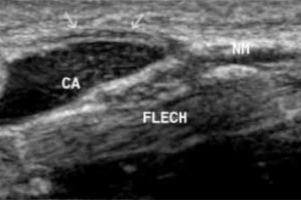 compression nerveuse main nerf de la main chirurgien main paris chirurgien nerfs paris maladie atteintes nerfs peripheriques docteur patrick houvet