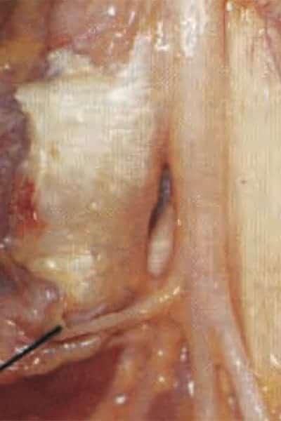 compression nerveuse main nerf de la main douloureux chirurgien main paris chirurgien nerfs paris maladie atteintes nerfs peripheriques docteur patrick houvet