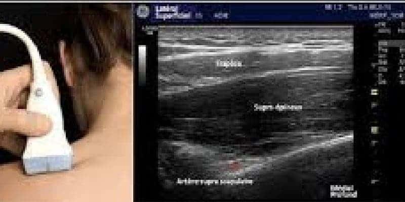 compression specifiques membre superieur epaule main paris chirurgien nerfs paris maladie atteintes nerfs peripheriques docteur patrick houvet