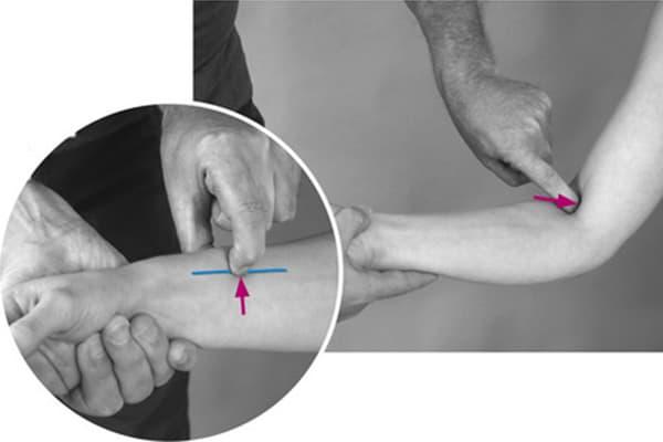 douleur coude sensible au toucher douleur au coude chirurgien bras paris chirurgien nerfs paris maladie atteintes nerfs peripheriques docteur patrick houvet