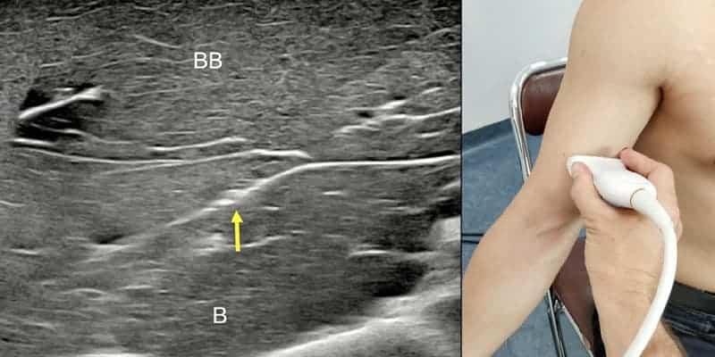 douleurs coude et avant bras nerf musculo-cutane chirurgien bras paris chirurgien nerfs paris maladie atteintes nerfs peripheriques docteur houvet