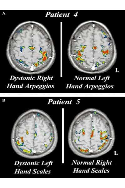 dystonie nerveuse la dystonie chirurgien paris chirurgien nerfs paris maladie atteintes nerfs peripheriques docteur patrick houvet