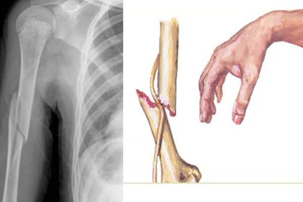 lesion nerf radial nerf radial douleur chirurgien bras paris chirurgien nerfs paris maladie atteintes nerfs peripheriques docteur patrick houvet