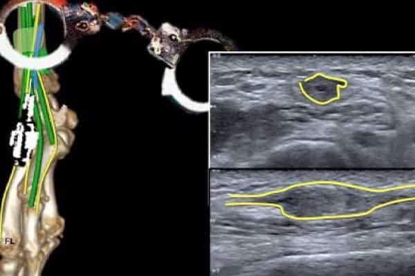 maladie de wartenberg compression nerf radial chirurgien poignet paris chirurgien nerfs paris maladie atteintes nerfs peripheriques docteur patrick houvet