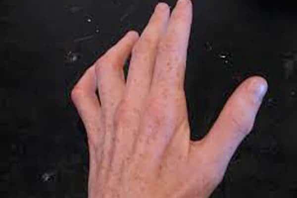 nerf cubital coude compression nerf cubital coude maladie professionnelle chirurgien coude paris chirurgien nerfs paris maladie atteintes nerfs peripheriques docteur houvet