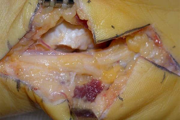 nerf cubital opération opération nerf cubital convalescence chirurgien poignet paris chirurgien nerfs paris maladie atteintes nerfs peripheriques docteur patrick houvet