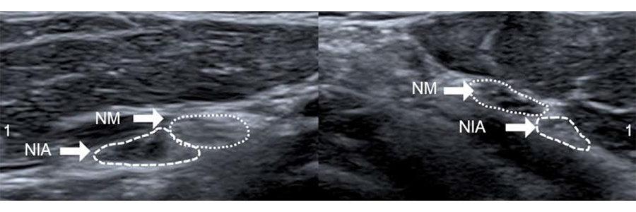 nerf interosseux antérieur nerf interosseux chirurgien avant-bras paris chirurgien nerfs paris maladie atteintes nerfs peripheriques dr patrick houvet