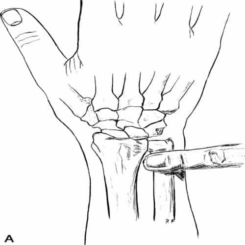 nerf interosseux nerf poignet chirurgien poignet paris chirurgien nerfs paris maladie atteintes nerfs peripheriques docteur patrick houvet