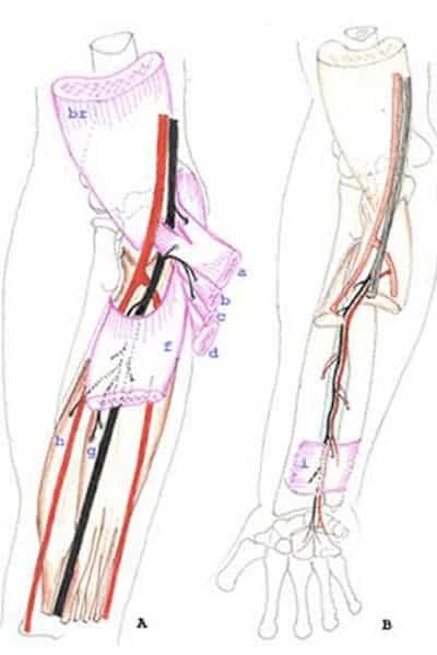 nerf median compression nerf median coude chirurgien coude paris chirurgien nerfs paris maladie atteintes nerfs peripheriques docteur patrick houvet
