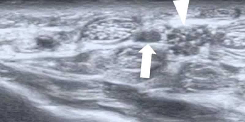 nerf median douleur nerf median main chirurgien main paris chirurgien nerfs paris maladie atteintes nerfs peripheriques docteur patrick houvet