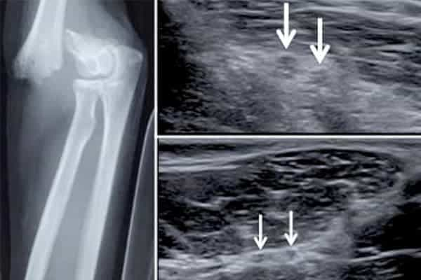 nerf radial douleur nerf radial paralysie chirurgien bras paris chirurgien nerfs paris maladie atteintes nerfs peripheriques docteur houvet