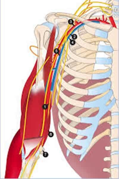 nerf radial douleur nerf radial paralysie chirurgien bras paris chirurgien nerfs paris maladie atteintes nerfs peripheriques docteur patrick houvet