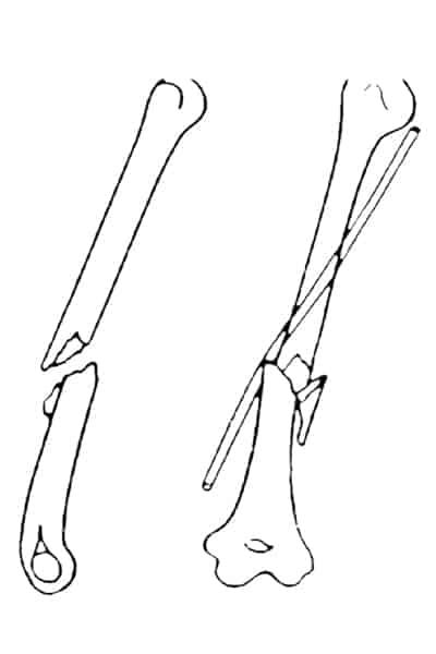 nerf radial sectionne nerf radial douleur chirurgien bras paris chirurgien nerfs paris maladie atteintes nerfs peripheriques docteur patrick houvet