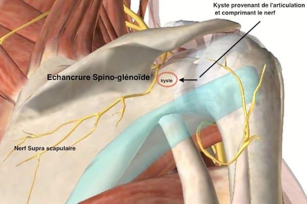 nerf supra-scapulaire compression du nerf supra-scapulaire chirurgien epaule paris chirurgien nerfs paris maladie atteintes nerfs peripheriques docteur patrick houvet