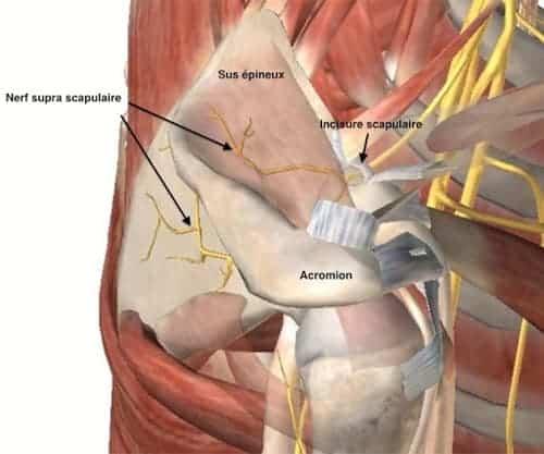 nerf supra scapulaire douleur compression du nerf supra scapulaire chirurgien epaule paris chirurgien nerfs paris maladie atteintes nerfs peripheriques docteur patrick houvet