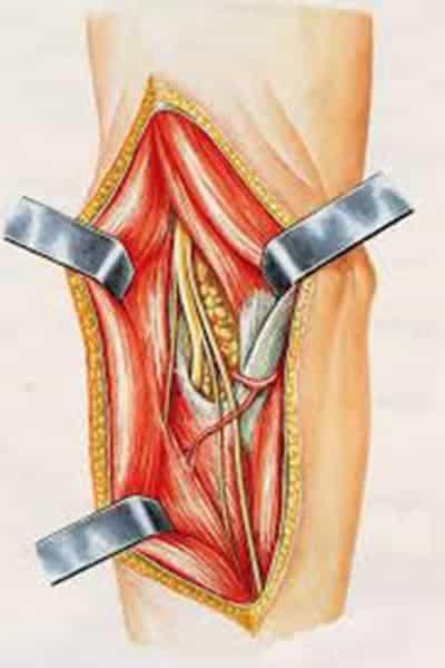 nerf ulnaire coude syndrome nerf interosseux posterieur chirurgien avant-bras paris chirurgien nerfs paris maladie atteintes nerfs peripheriques docteur patrick houvet