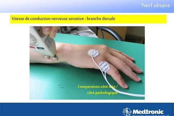nerf ulnaire douleur nerf ulnaire chirurgien main paris chirurgien nerfs paris maladie atteintes nerfs peripheriques docteur patrick houvet