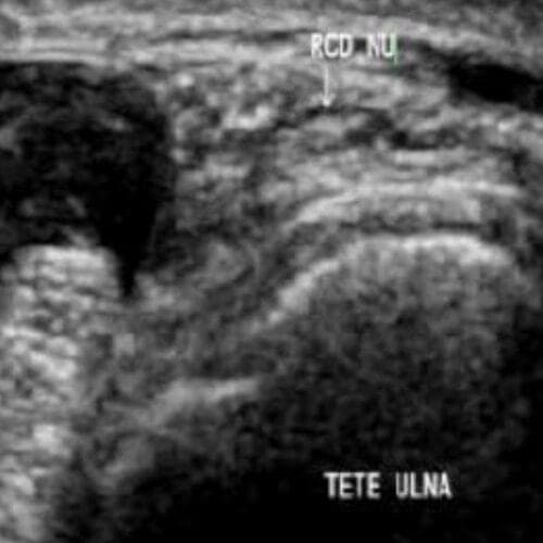 nerf ulnaire douleur nerf ulnaire traitement chirurgien main paris chirurgien nerfs paris maladie atteintes nerfs peripheriques docteur patrick houvet