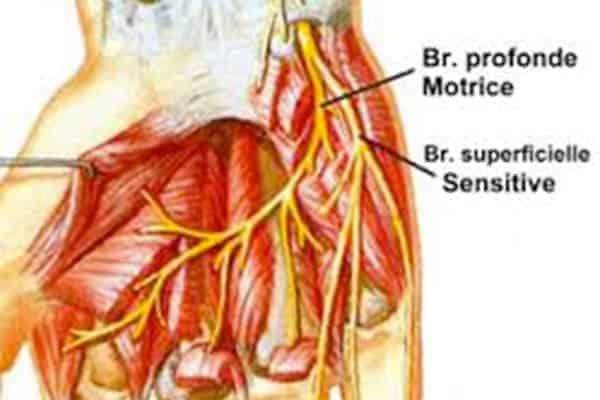 nerf ulnaire main nerf ulnaire anatomie chirurgien main paris chirurgien nerfs paris maladie atteintes nerfs peripheriques docteur patrick houvet