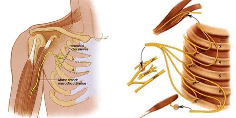 neurotisation epaule main paris chirurgien nerfs paris maladie atteintes nerfs peripheriques docteur patrick houvet