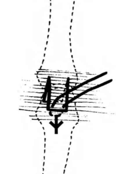 paralysie des doigts paralysie doigt de la main chirurgien main paris chirurgien nerfs paris maladie atteintes nerfs peripheriques docteur patrick houvet
