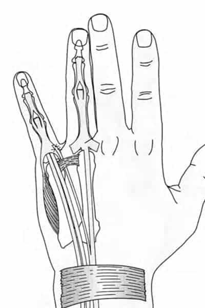 paralysie des doigts paralysie doigt de la main chirurgien main paris chirurgien nerfs paris maladie atteintes nerfs peripheriques dr patrick houvet