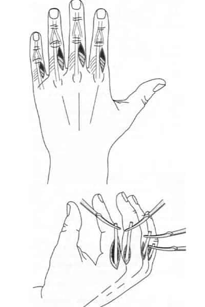 paralysie des mains paralysie des doigts de la main droite chirurgien main paris chirurgien nerfs paris maladie atteintes nerfs peripheriques docteur patrick houvet