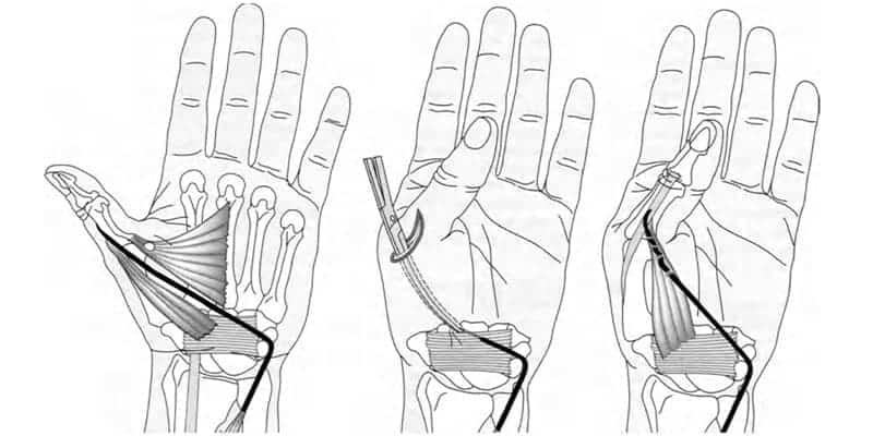 paralysie du pouce paralysie doigt de la main chirurgien main paris chirurgien nerfs paris maladie atteintes nerfs peripheriques docteur houvet