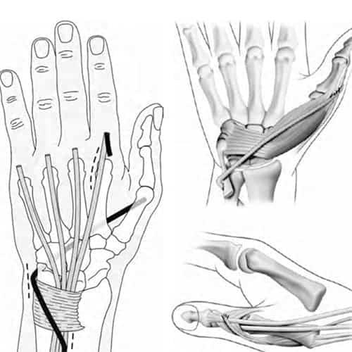 paralysie du pouce paralysie temporaire du pouce chirurgien main paris chirurgien nerfs paris maladie atteintes nerfs peripheriques docteur patrick houvet