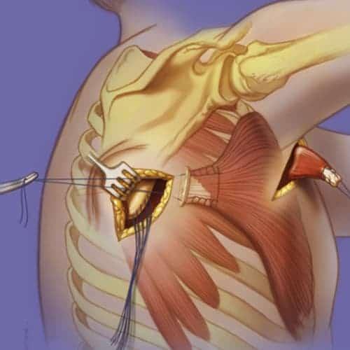 paralysie grand dentele paralysie du grand dentele chirurgien epaule paris chirurgien nerfs paris atteintes nerfs peripheriques docteur patrick houvet