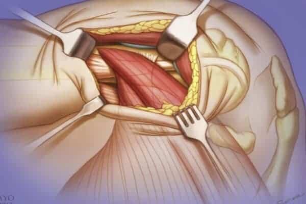 paralysie grand dentele paralysie du grand dentele chirurgien epaule paris chirurgien nerfs paris maladie atteintes nerfs peripheriques docteur houvet