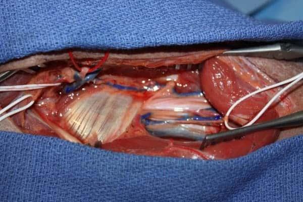 paralysie nerf axillaire nerf circonflexe operation chirurgien epaule paris chirurgien nerfs paris maladie atteintes nerfs peripheriques docteur houvet