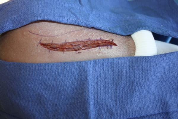 paralysie nerf axillaire nerf circonflexe operation chirurgien epaule paris chirurgien nerfs paris maladie atteintes nerfs peripheriques dr patrick houvet