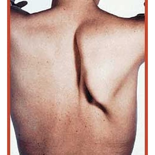paralysie spinale paralysie nerf spinal traitement chirurgien cervicales paris chirurgien nerfs paris maladie atteintes nerfs peripheriques docteur patrick houvet