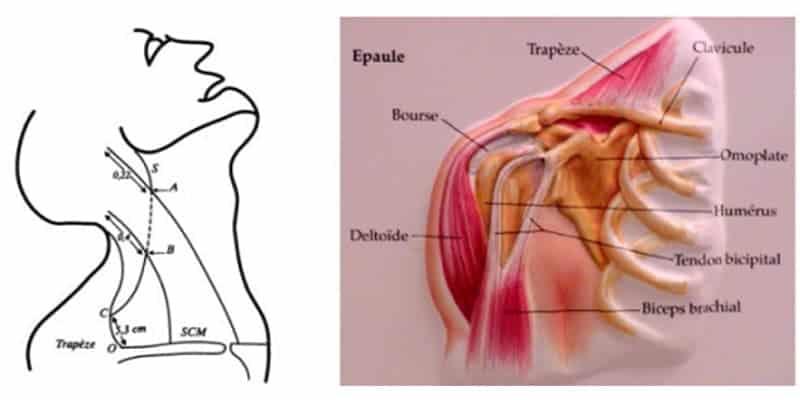 paralysie spinale paralysie spinale chirurgien cervicales paris chirurgien nerfs paris maladie atteintes nerfs peripheriques docteur patrick houvet