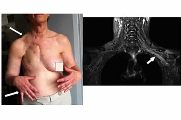 plexite radique plexite post radique chirurgien cervicales paris chirurgien nerfs paris maladie atteintes nerfs peripheriques docteur patrick houvet