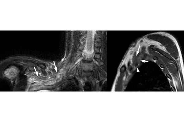 plexus brachiale plexus brachial symptomes chirurgien cervicales paris chirurgien nerfs paris maladie atteintes nerfs peripheriques drr patrick houvet