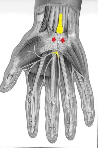 qu est ce que le canal carpien canal carpien arrêt de travail chirurgien poignet paris chirurgien nerfs paris maladie atteintes nerfs peripheriques docteur patrick houvet