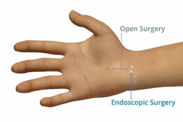 qu est ce que le canal carpien canal carpien arrêt de travail chirurgien poignet paris chirurgien nerfs paris maladie atteintes nerfs peripheriques dr patrick houvet