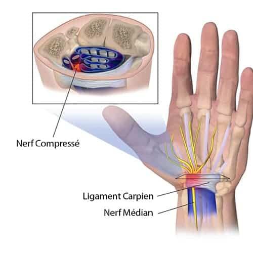 quest ce que le canal carpien canal carpien arrêt de travail chirurgien poignet paris chirurgien nerfs paris maladie atteintes nerfs peripheriques docteur patrick houvet