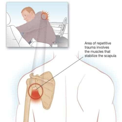 scapulocostal syndrome exercises douleurs épaule chirurgien epaule paris chirurgien nerfs paris maladie atteintes nerfs peripheriques docteur patrick houvet